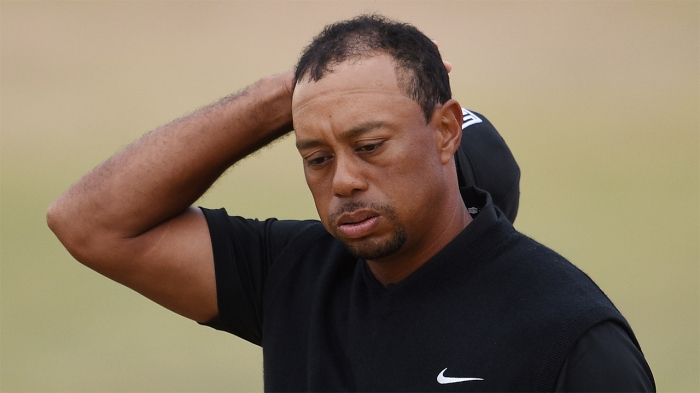 Tiger_Woods_Hairline.jpg